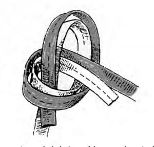 Grand Teton National Park rangers included in their accident report a paper by Richard Wright, Eric Steffler and Tom Walters on the perils of the water knot. The paper includes this exploded-view illustration of one. When tied on 9/16ths-inch nylon webbing, repeated loading and unloading of the knot can cause it to slip within as few as 100 stress cycles. (Grand Teton National Park)